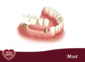 <span>M – jak MOST</span> = zęby mocowane na filarach na stałe