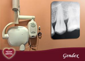 <span>G – jak GENDEX</span> = bezpieczne promienie rentgenowskie