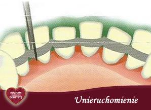 <span>U – jak UNIERUCHOMIENIE</span> = unieruchomienie rozchwianych zębów